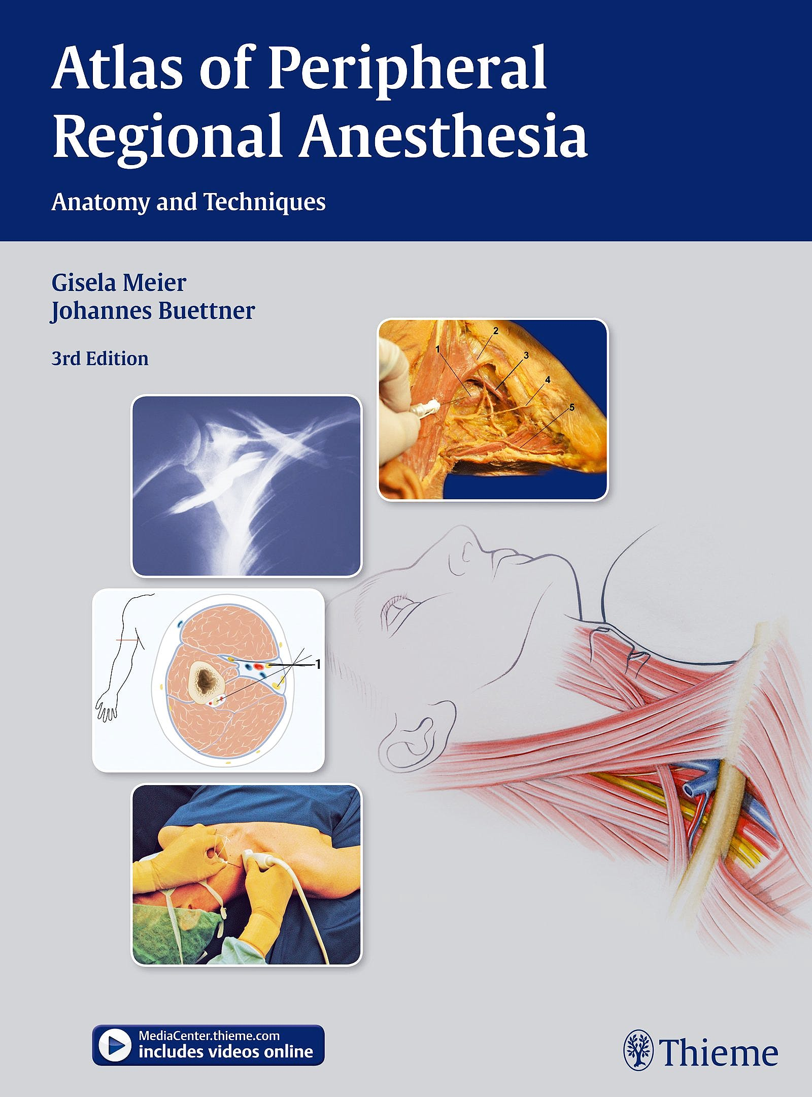 Portada del libro 9783131397935 Atlas of Peripheral Regional Anesthesia. Anatomy and Techniques