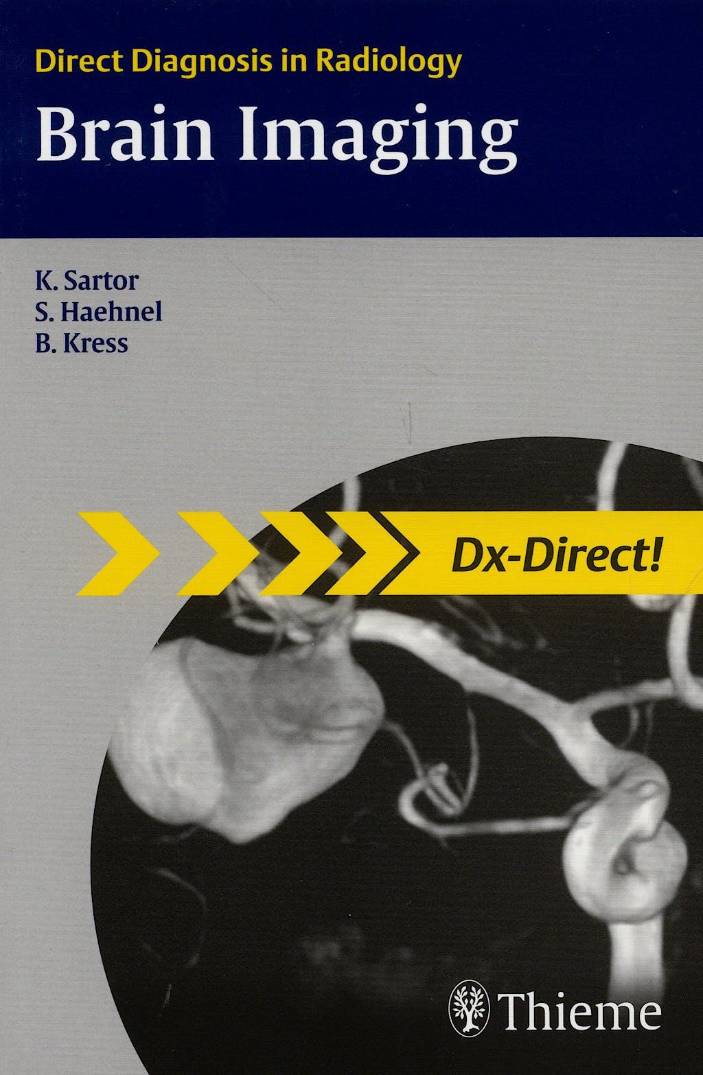 Portada del libro 9783131439611 Brain Imaging. Direct Diagnosis in Radiology