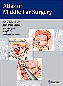 Portada del libro 9783131450418 Atlas of Middle Ear Surgery