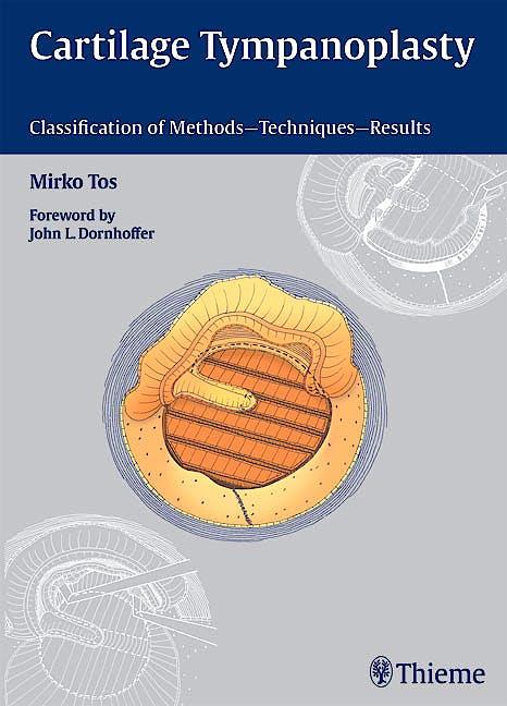 Portada del libro 9783131450913 Cartilage Tympanoplasty. Classification of Methods - Techniques - Results