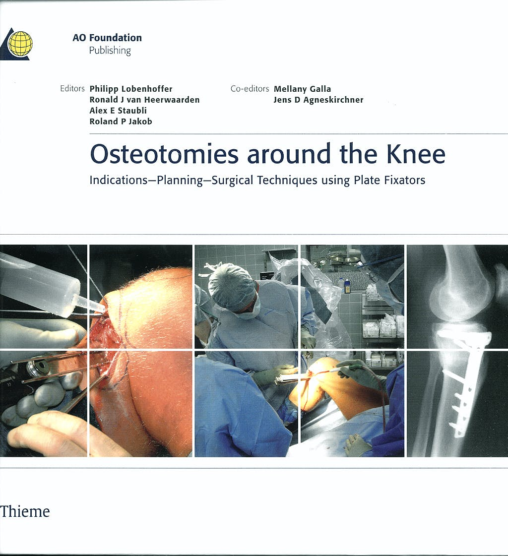 Portada del libro 9783131475312 Osteotomies around the Knee. Indication-Planning-Surgical Techniques Using Plate Fixators