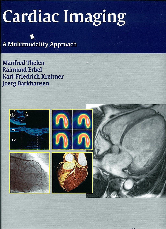 Portada del libro 9783131477811 Cardiac Imaging. a Multimodality Approach