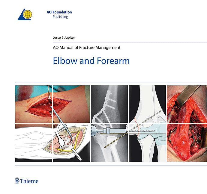 Portada del libro 9783131492715 AO Manual of Fracture Management. Elbow and Forearm