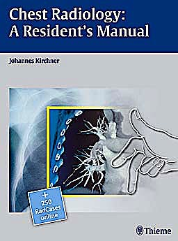 Portada del libro 9783131538710 Chest Radiology: A Resident's Manual + 250 Radcases Online