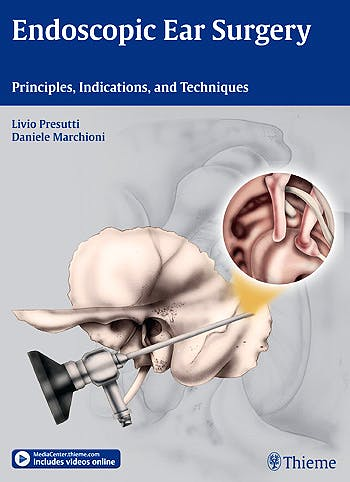 Portada del libro 9783131630414 Endoscopic Ear Surgery. Principles, Indications and Techniques + Content Online