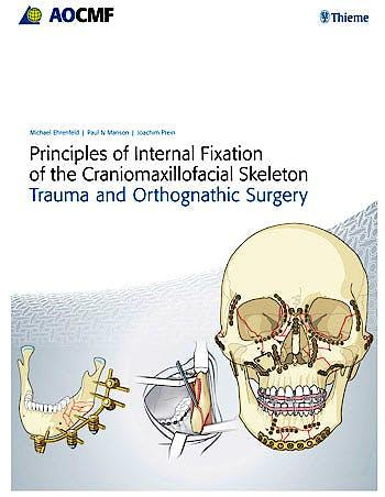 Portada del libro 9783131714817 Principles of Internal Fixation of the Craniomaxillofacial Skeleton