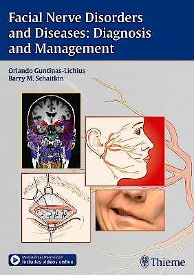 Portada del libro 9783131751812 Facial Nerve Disorders and Diseases: Diagnosis and Management