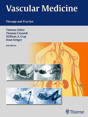 Portada del libro 9783131768414 Vascular Medicine. Therapy and Practice