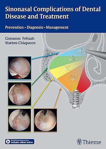 Portada del libro 9783131997012 Sinonasal Complications of Dental Disease and Treatment. Prevention - Diagnosis - Management
