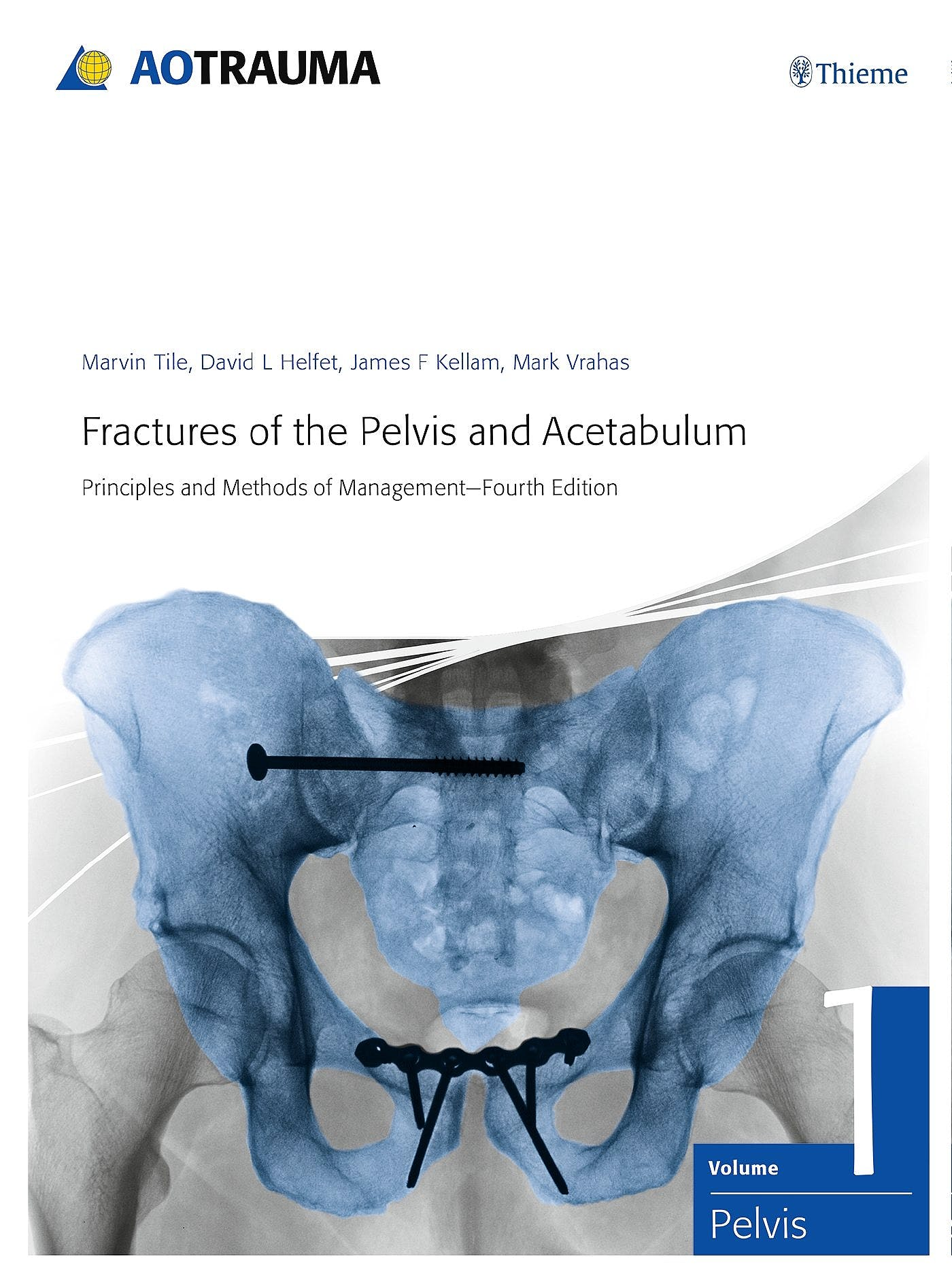 Portada del libro 9783132006317 Fractures of the Pelvis and Acetabulum. Principles and Methods of Management, 2 Vols.