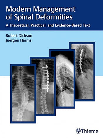 Portada del libro 9783132016316 Modern Management of Spinal Deformities. A Theoretical, Practical and Evidence-Based Text