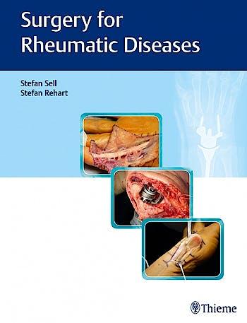 Portada del libro 9783132400078 Surgery for Rheumatic Diseases