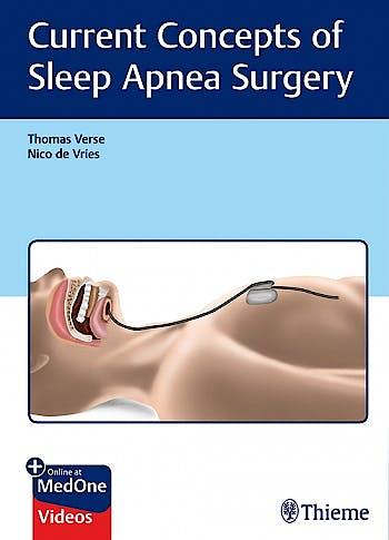 Portada del libro 9783132401198 Current Concepts of Sleep Apnea Surgery + Online at MedOne Videos