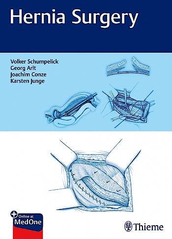 Portada del libro 9783132405516 Hernia Surgery + Online at MedOne
