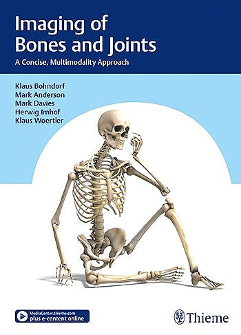 Portada del libro 9783132406476 Imaging of Bones and Joints. A Concise, Multimodality Approach