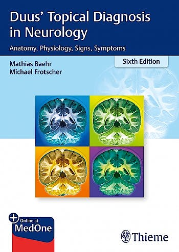 Portada del libro 9783132409583 Topical Diagnosis in Neurology. Anatomy, Physiology, Signs, Symptoms + Online at MedOne