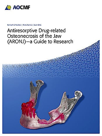 Portada del libro 9783132412705 Antiresorptive Drug-Related Osteonecrosis of the Jaw (Aronj) - A Guide to Research