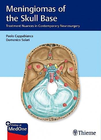 Portada del libro 9783132412866 Meningiomas of the Skull Base. Treatment Nuances in Contemporary Neurosurgery