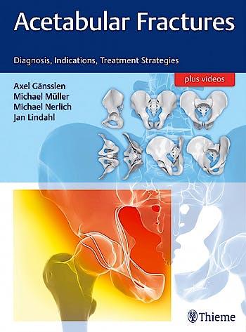 Portada del libro 9783132415607 Acetabular Fractures. Diagnosis, Indications, Treatment Strategies + Videos