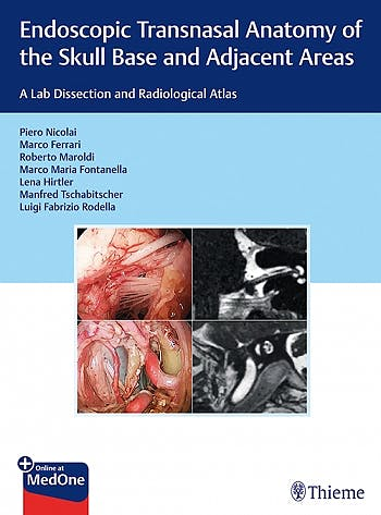 Portada del libro 9783132415621 Endoscopic Transnasal Anatomy of the Skull Base and Adjacent Areas. A Lab Dissection and Radiological Atlas