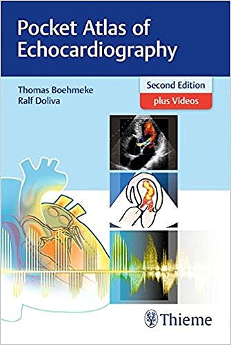 Portada del libro 9783132417229 Pocket Atlas of Echocardiography