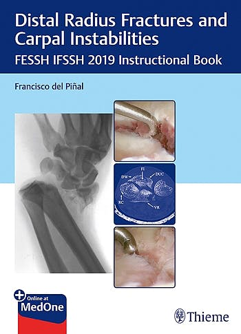 Portada del libro 9783132423794 Distal Radius Fractures and Carpal Instabilities. FESSH IFSSH 2019 Instructional Book