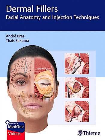 Portada del libro 9783132427723 Dermal Fillers. Facial Anatomy and Injection Techniques