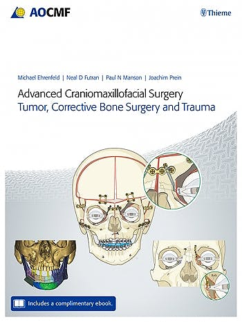 Portada del libro 9783132428393 Advanced Craniomaxillofacial Surgery. Tumor, Corrective Bone Surgery, and Trauma (Includes a Complementary E-Book)