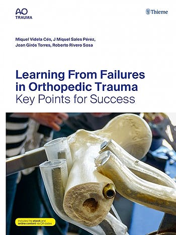 Portada del libro 9783132434561 Learning from Failures in Orthopedic Trauma. Key Points for Success
