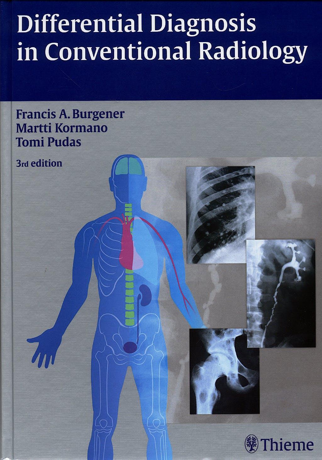 Portada del libro 9783136561034 Differential Diagnosis in Conventional Radiology