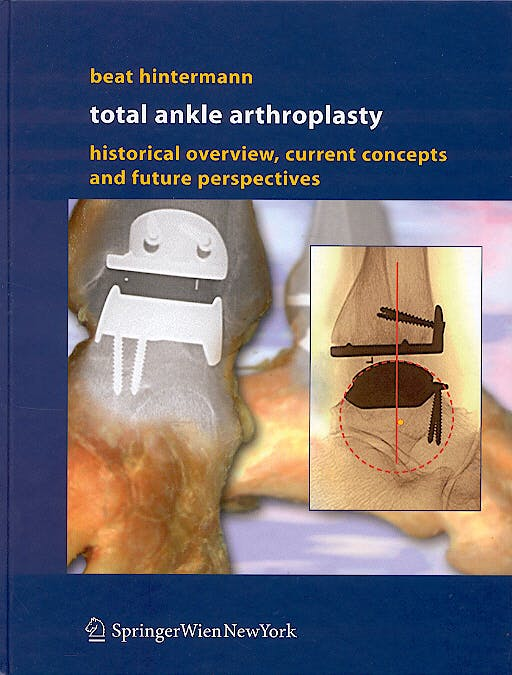 Portada del libro 9783211212523 Total Ankle Arthroplasty. Historical Overview, Current Concepts and Future Perspectives