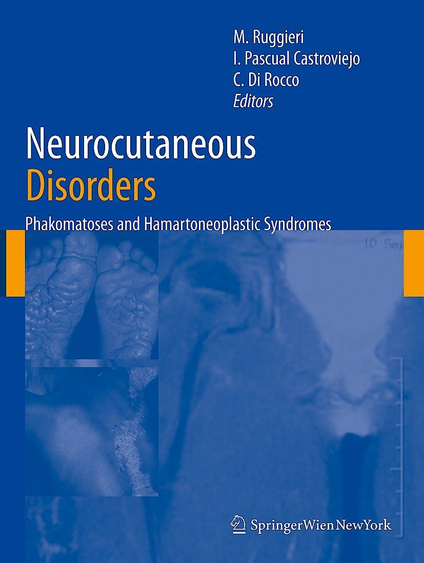 Portada del libro 9783211213964 Neurocutaneous Disorders. Phakomatoses and Hamartoneoplastic Syndromes