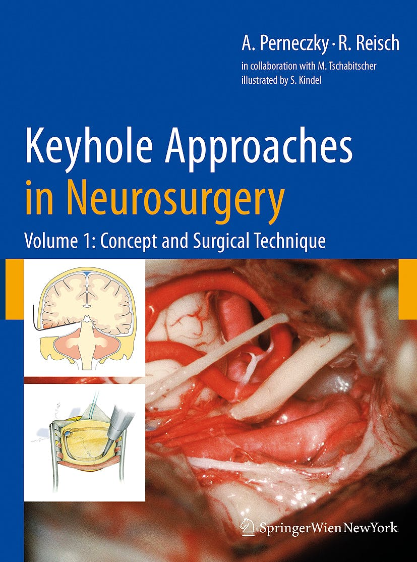 Portada del libro 9783211838853 Keyhole Approaches in Neurosurgery, Vol. 1: Concept and Surgical Technique