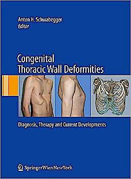 Portada del libro 9783211991374 Congenital Thoracic Wall Deformities. Diagnosis, Therapy and Current Developments