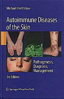 Portada del libro 9783211992241 Autoimmune Diseases of the Skin. Pathogenesis, Diagnosis, Management