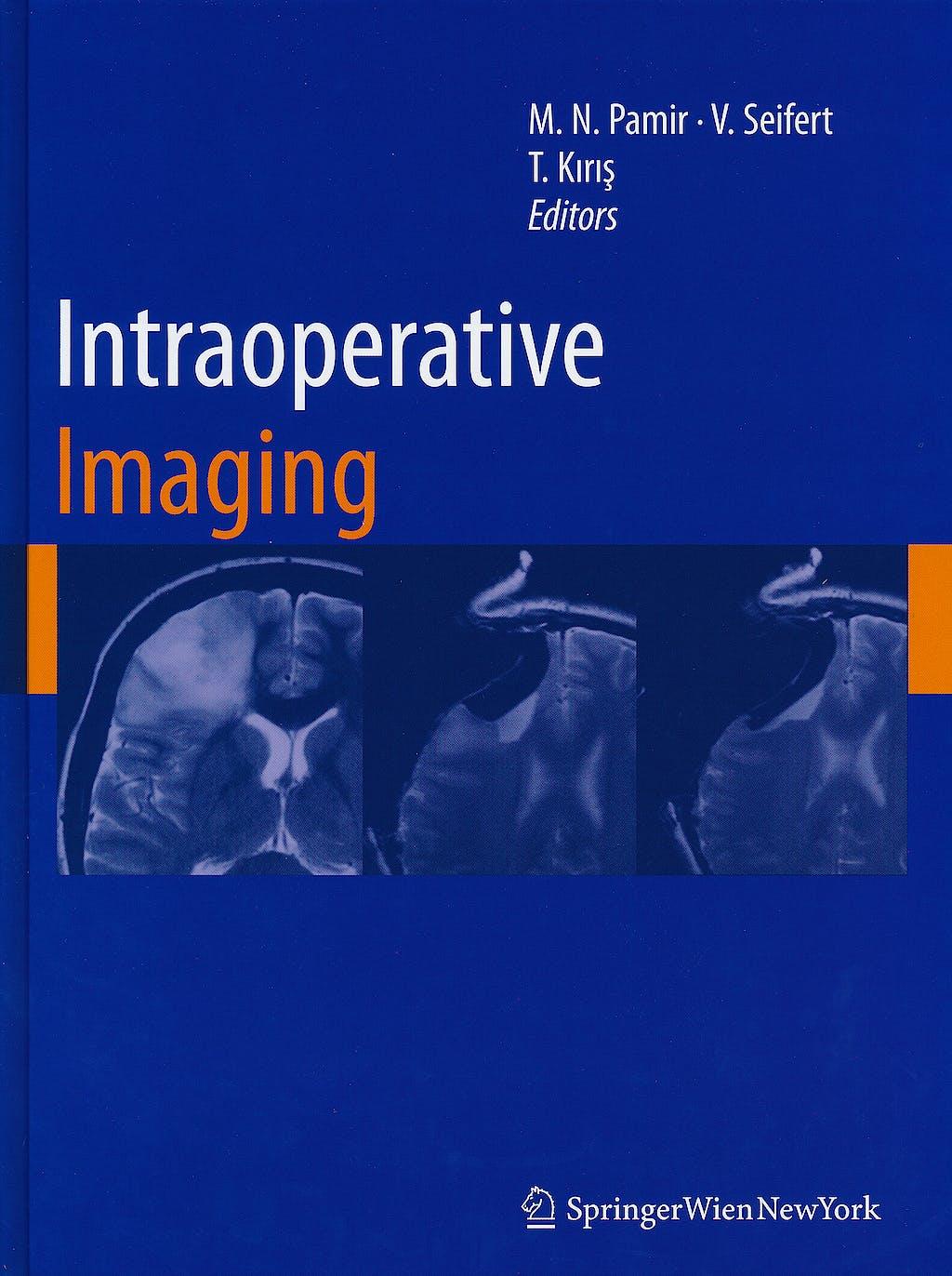 Portada del libro 9783211996508 Intraoperative Imaging