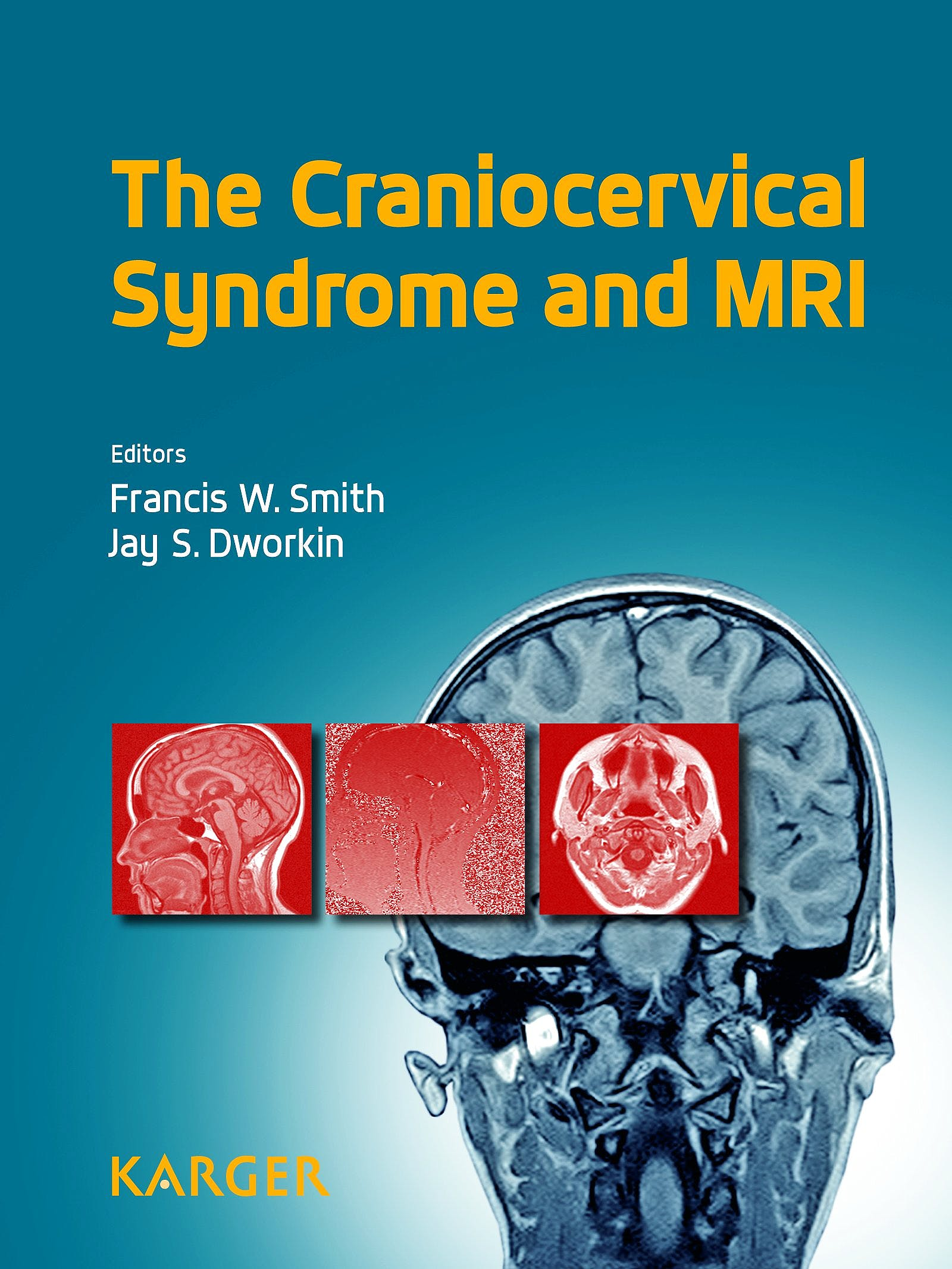 Portada del libro 9783318026962 The Craniocervical Syndrome and Mri
