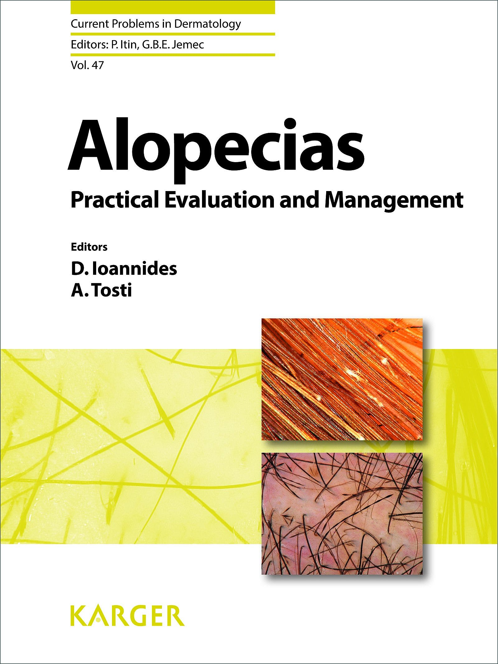 Portada del libro 9783318027747 Alopecias - Practical Evaluation and Management (Current Problems in Dermatology, Vol. 47)