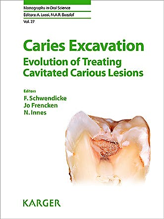 Portada del libro 9783318063684 Caries Excavation. Evolution of Treating Cavitated Carious Lesions (Monographs in Oral Science, Vol. 27)