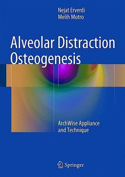 Portada del libro 9783319077062 Alveolar Distraction Osteogenesis. Archwise Appliance and Technique