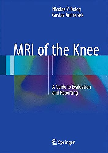 Portada del libro 9783319081649 Mri of the Knee. a Guide to Evaluation and Reporting