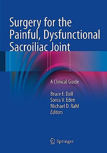 Portada del libro 9783319107257 Surgery for the Painful, Dysfunctional Sacroiliac Joint. a Clinical Guide