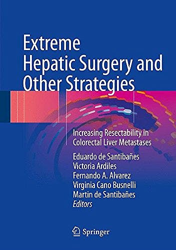 Portada del libro 9783319138954 Extreme Hepatic Surgery and Other Strategies