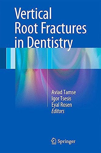 Portada del libro 9783319168463 Vertical Root Fractures in Dentistry