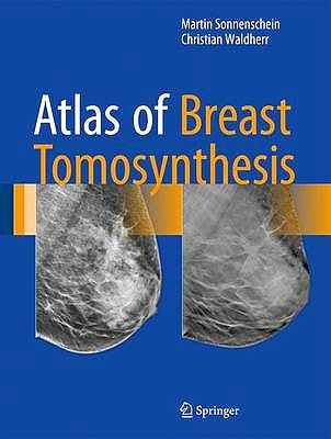 Portada del libro 9783319215655 Atlas of Breast Tomosynthesis. Imaging Findings and Image-Guided Interventions