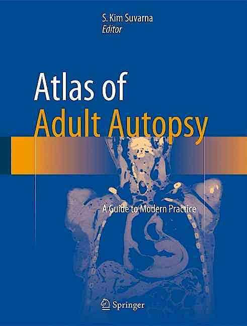 Portada del libro 9783319270203 Atlas of Adult Autopsy. a Guide to Modern Practice