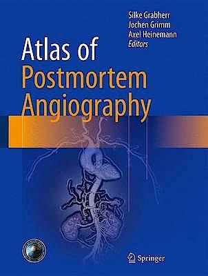 Portada del libro 9783319285351 Atlas of Postmortem Angiography