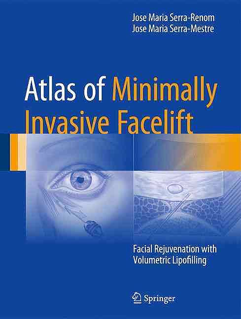 Portada del libro 9783319330167 Atlas of Minimally Invasive Facelift. Facial Rejuvenation with Volumetric Lipofilling