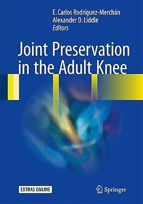 Portada del libro 9783319418070 Joint Preservation in the Adult Knee