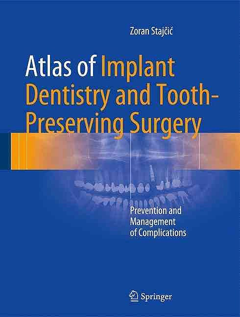Portada del libro 9783319421223 Atlas of Implant Dentistry and Tooth-Preserving Surgery. Prevention and Management of Complications